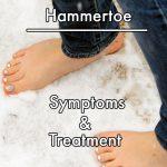 Hammertoe Symptoms and Treatment