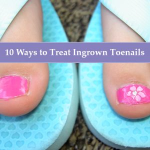 10 Ways to Treat Ingrown Toenails (MorgueFile.com)